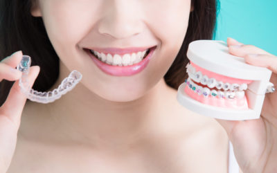 Invisalign vs Braces: How to Know What Is Best for You